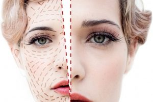 Chirurgia Estetica