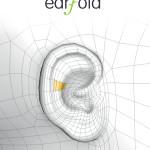 earFOLD™: una nuova soluzione mininvasiva per le orecchie ad ansa