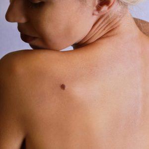 Rimozione Nei e/o Xantelasmi & Revisione Cicatrici e/o Cheloidi