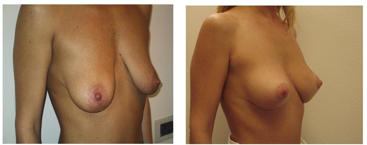 Un seno perfetto per tutta la vita con un intervento non invasivo: il filo chirurgico permante